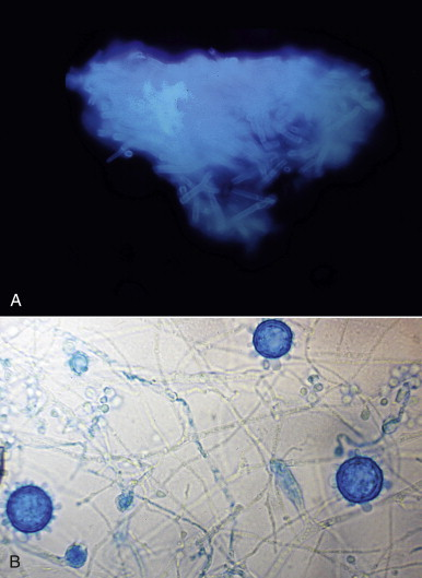 Fungal Morphology - an overview | ScienceDirect Topics