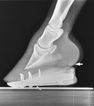 Digital Radiography - an overview | ScienceDirect Topics