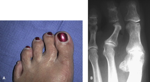 Claw Toe - an overview | ScienceDirect Topics