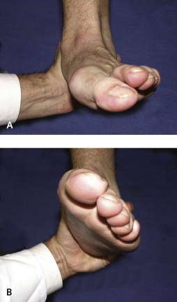 Foot and Ankle Surgery - an overview | ScienceDirect Topics