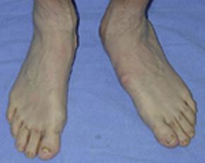 Single heel rise test
