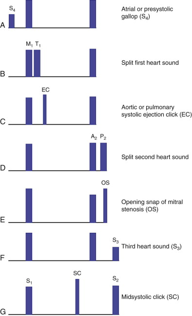 Heart Sounds - an overview | ScienceDirect Topics