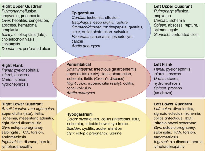Hernia Strangulation - an overview | ScienceDirect Topics