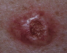 Non Melanoma Skin Cancer - an overview   ScienceDirect Topics