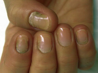 Nail Disease - an overview | ScienceDirect Topics