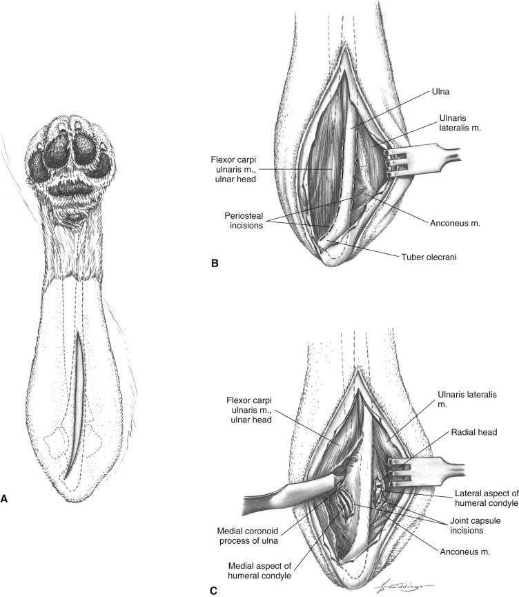 Monteggia Fracture An Overview Sciencedirect Topics