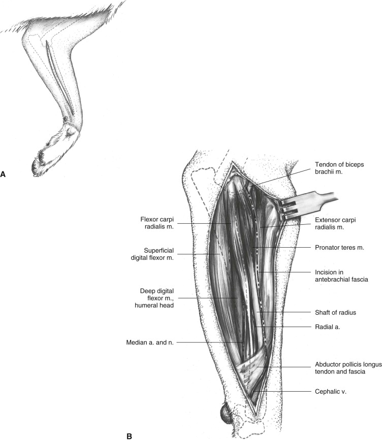 Supinator Muscle An Overview Sciencedirect Topics