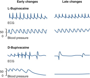 Levobupivacaine - an overview | ScienceDirect Topics