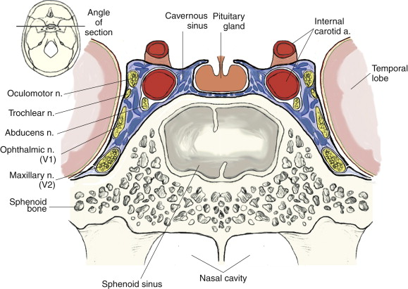 Cavernous Sinus - an overview   ScienceDirect Topics