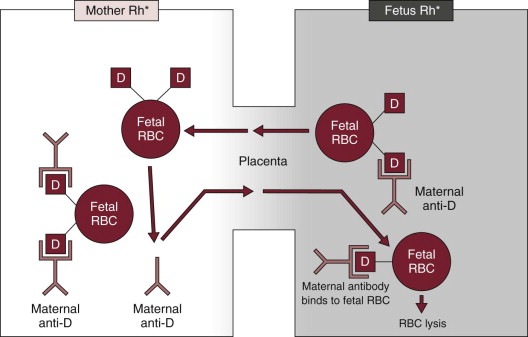 Blood Group Incompatibility - an overview | ScienceDirect Topics
