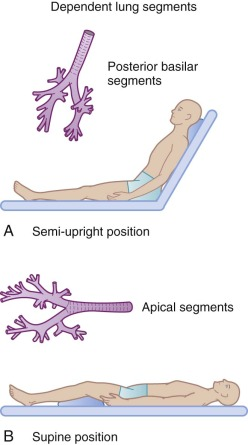 Postural Drainage - an overview | ScienceDirect Topics