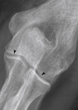 Dureri de spate in partea stanga da lateral