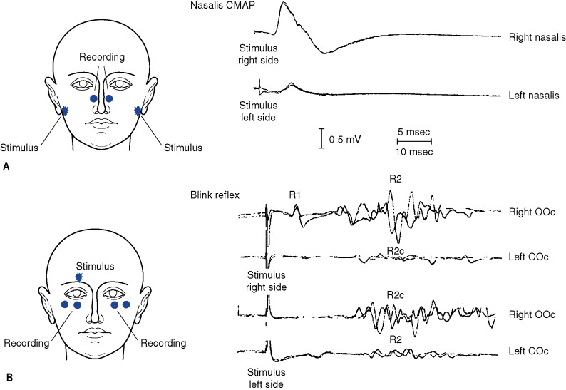 Authoritative facial nerve conduction study with