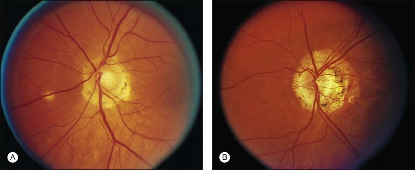 Ocular Histoplasmosis - an overview | ScienceDirect Topics