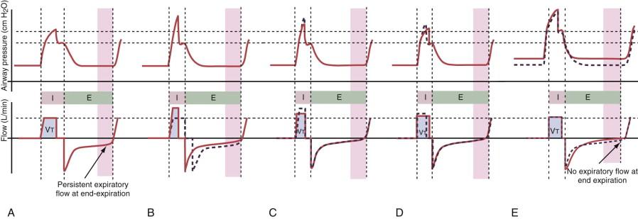 Expiratory Flow An Overview Sciencedirect Topics