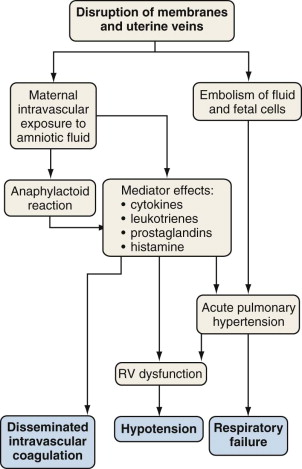 Amnion Fluid Embolism - an overview | ScienceDirect Topics
