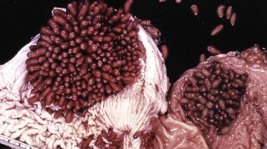 Botfly - an overview | ScienceDirect Topics