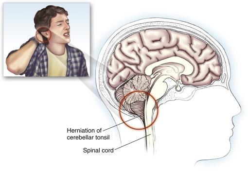 Chiari malformation headache after sex