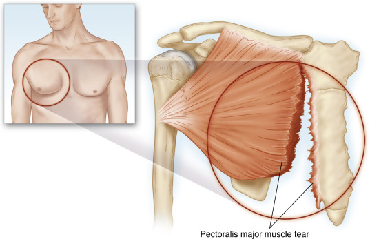pectoralis major muscle an overview sciencedirect topicssign in to download full size image