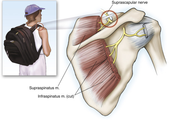 Suprascapular Nerve - an overview   ScienceDirect Topics