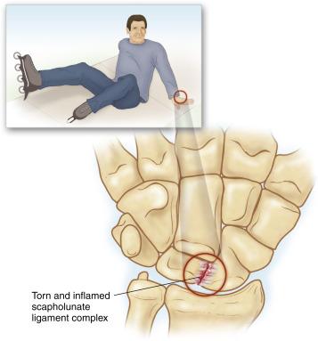 Scaphoid Bone An Overview Sciencedirect Topics