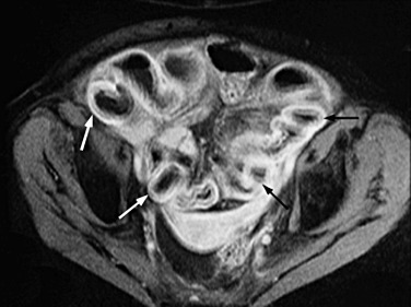 Radiation Enteropathy - an overview | ScienceDirect Topics