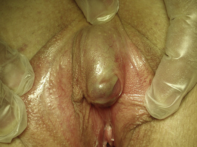 Can how big should my clitoris be sorry