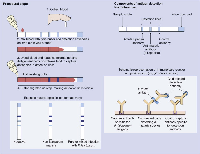 Rapid Diagnostic Test - an overview | ScienceDirect Topics