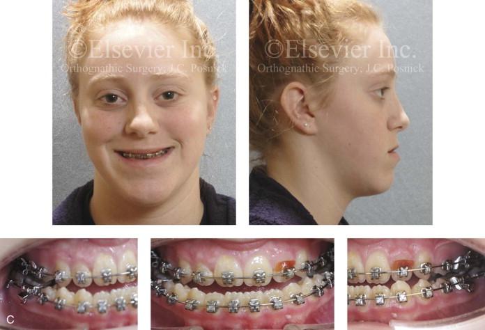 Multiple tooth extraction facial deformaties