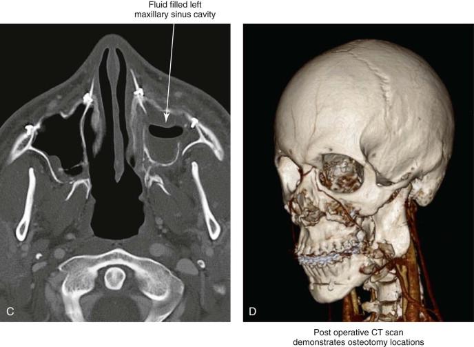 Maxilla Sinusitis - an overview   ScienceDirect Topics