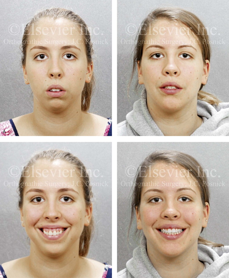 Impacted Wisdom Teeth - an overview | ScienceDirect Topics