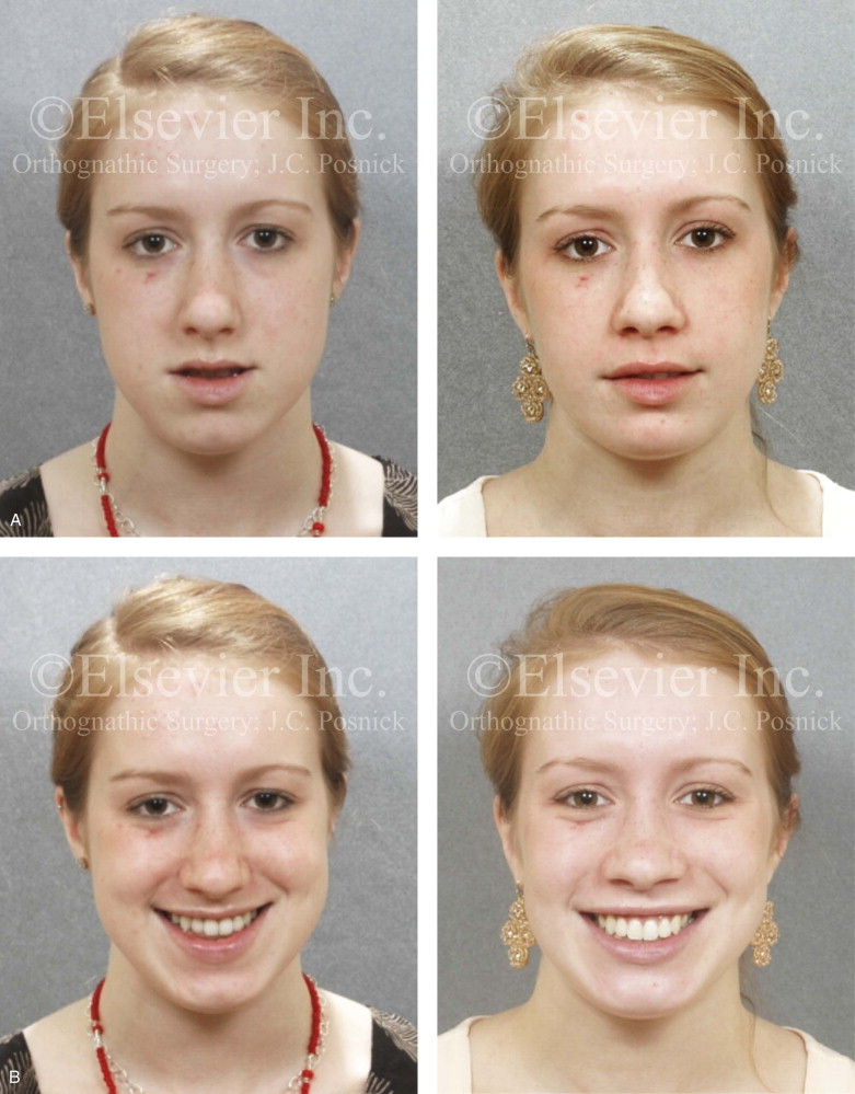 Multiple tooth extraction facial deformaties question removed