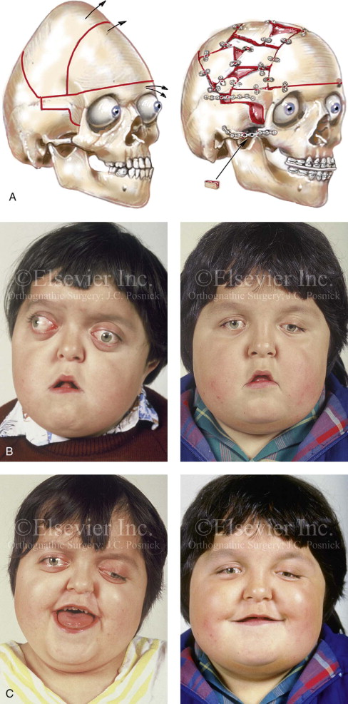 Apert Syndrome An Overview Sciencedirect Topics
