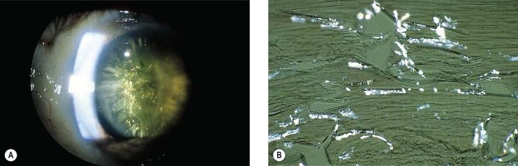 Lens Cortex An Overview Sciencedirect Topics