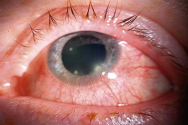 Staphylococcal Blepharitis - an overview | ScienceDirect Topics