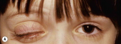Chronic Conjunctivitis - an overview | ScienceDirect Topics