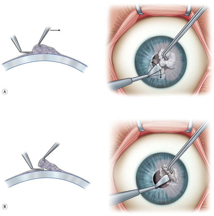 Superficial Keratectomy - an overview | ScienceDirect Topics