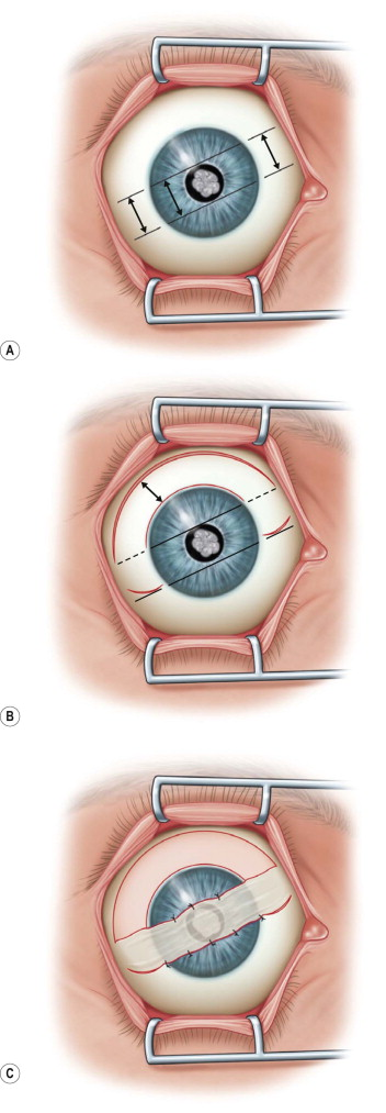 Conjunctival Flap - an overview | ScienceDirect Topics