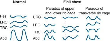 Flail Chest - an overview | ScienceDirect Topics