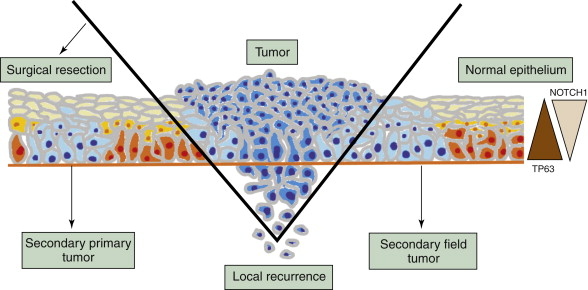 Head and Neck Squamous Cell Carcinoma - an overview