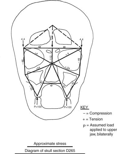 Bone Morphology