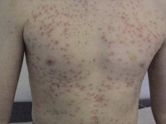 Hot Tub Folliculitis - an overview | ScienceDirect Topics