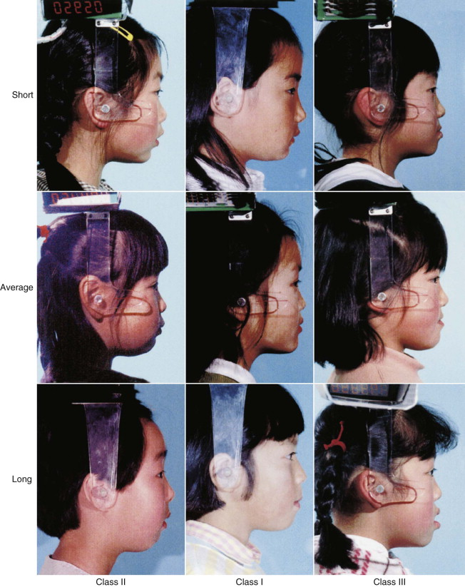 Class III Malocclusion - an overview | ScienceDirect Topics
