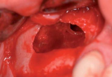 Sinus Lift - an overview | ScienceDirect Topics