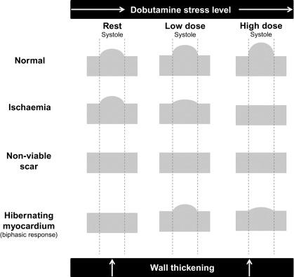 Dobutamine An Overview ScienceDirect Topics