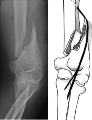 Spiral Fracture - an overview | ScienceDirect Topics