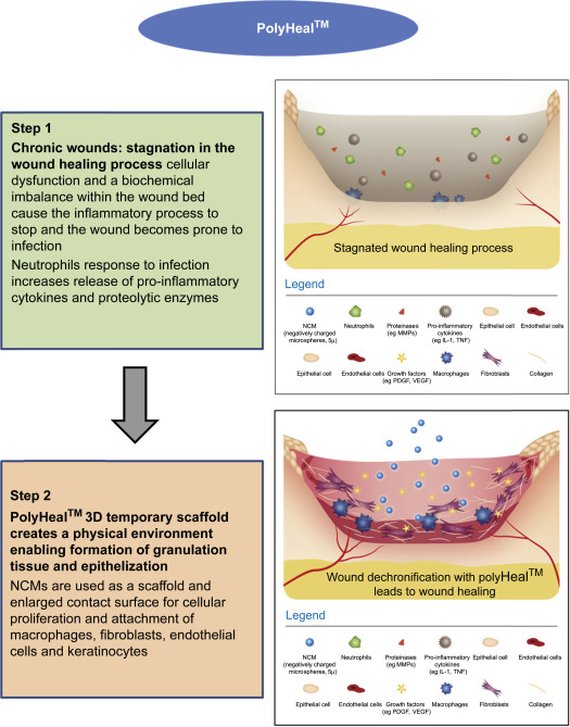 Microparticulate polymers and hydrogels for wound healing
