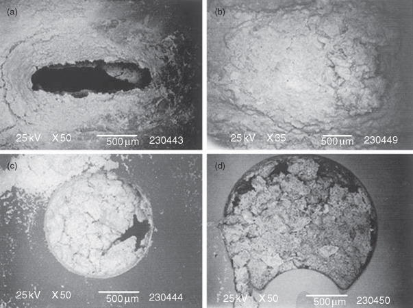 Proteus mirabilis biofilm formation and catheter design