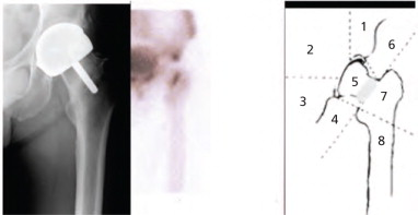 Femoral Neck Fracture - an overview | ScienceDirect Topics