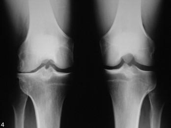 Examens complémentaires devant un genou douloureux de l ...